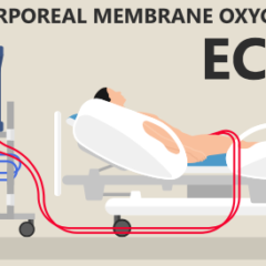 Transport of the ECMO-Dependent Patient:   Introduction, Indications, and the Novel Role of Critical Care Paramedics